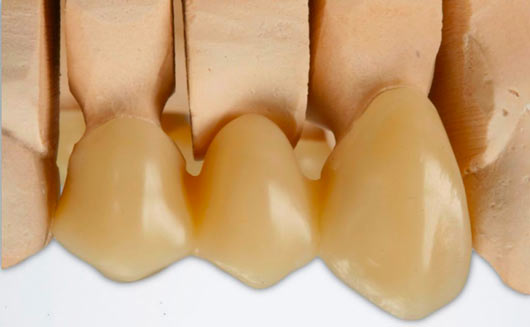 3D printing provisional dental crowns. 3D printing for the dental industry with SLA/DLP technologies.