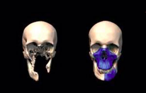3D printing and 3D scanning for museums and archeology