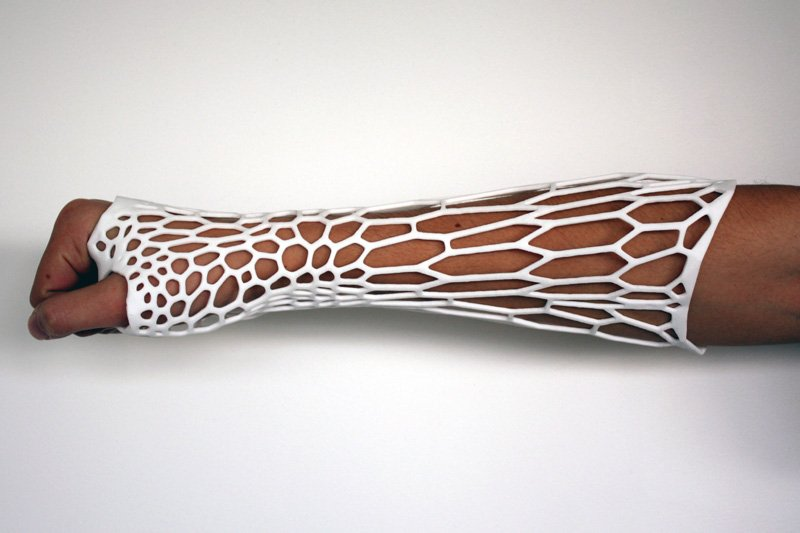 The Cortex exoskeletal cast: a 3D printed cast designed by Jake Evill (medical 3D printing)