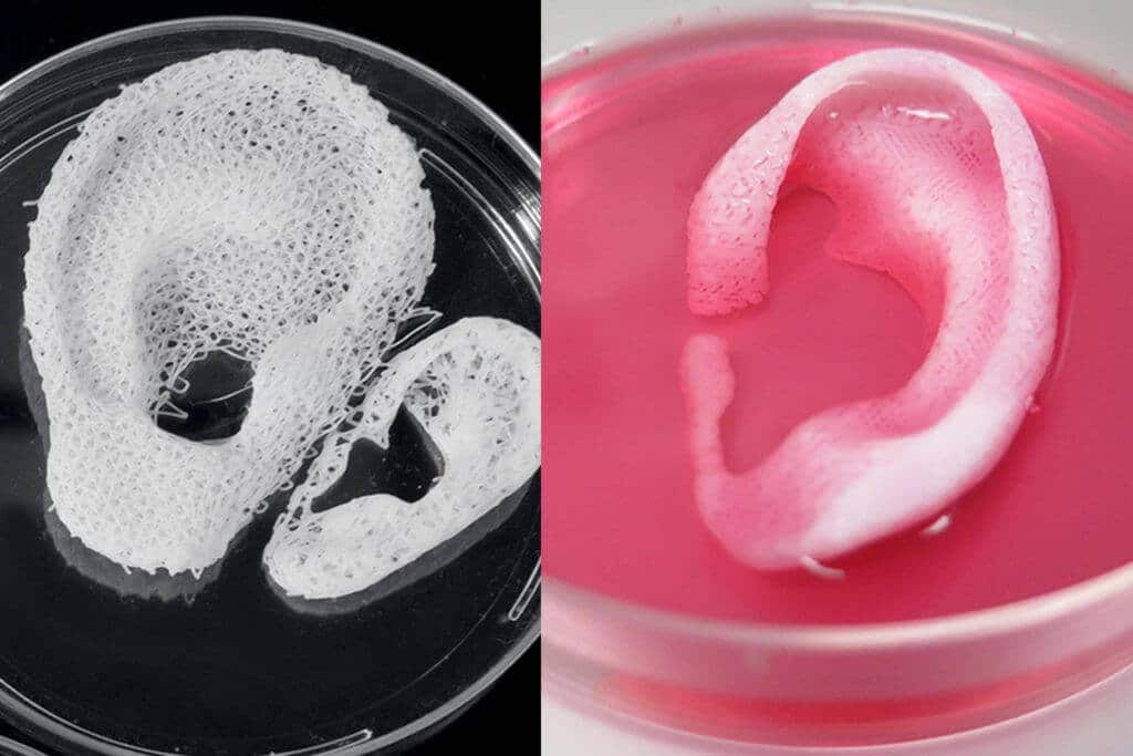3D printed ear scaffold