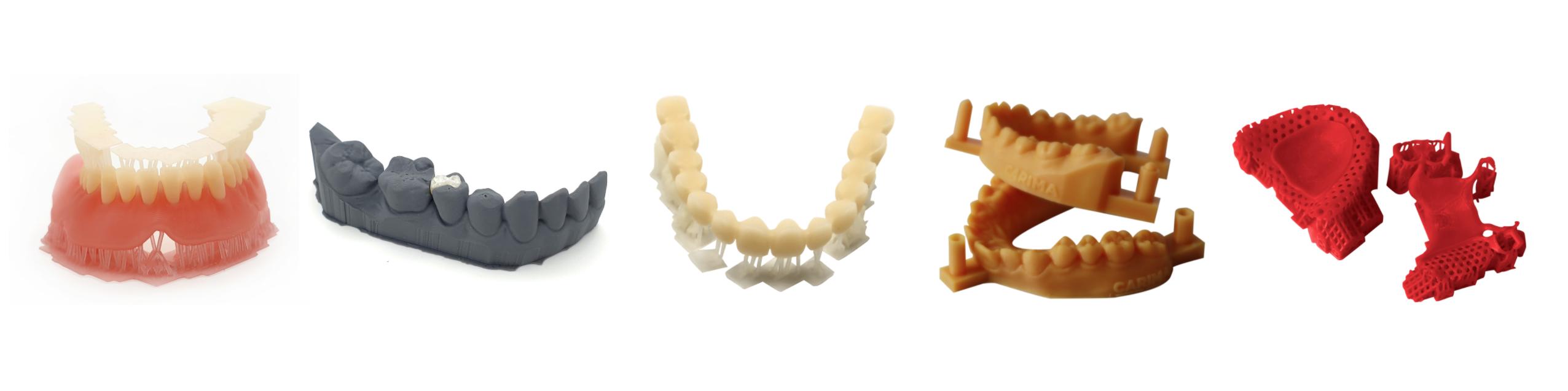 Carima sponsored banner dental resin 3D print examples
